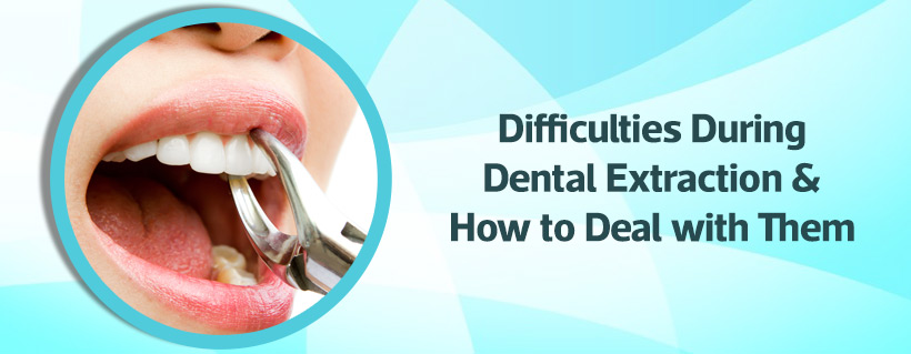 Difficulties During Dental Extraction How To Deal With Them Icpa Health Products Ltd