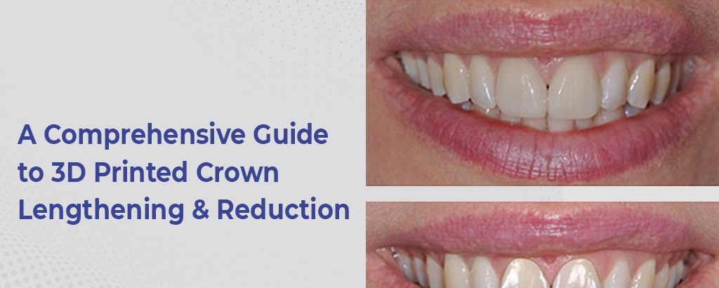 A Comprehensive Guide to 3D Printed Crown Lengthening & Reduction