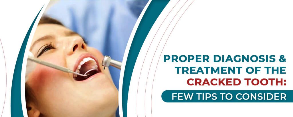 Proper Diagnosis & Treatment of the Cracked Tooth: Few Tips to Consider