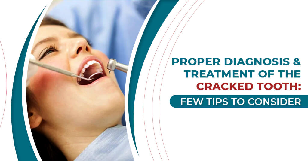 Proper Diagnosis & Treatment of the Cracked Tooth Image